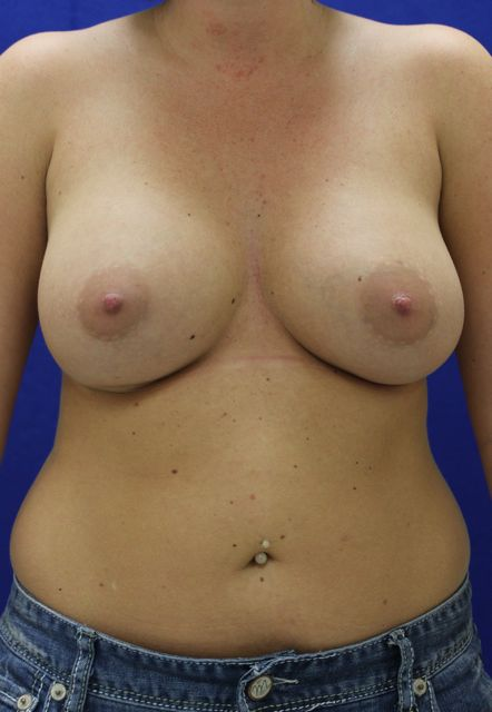 cycstic in breasts